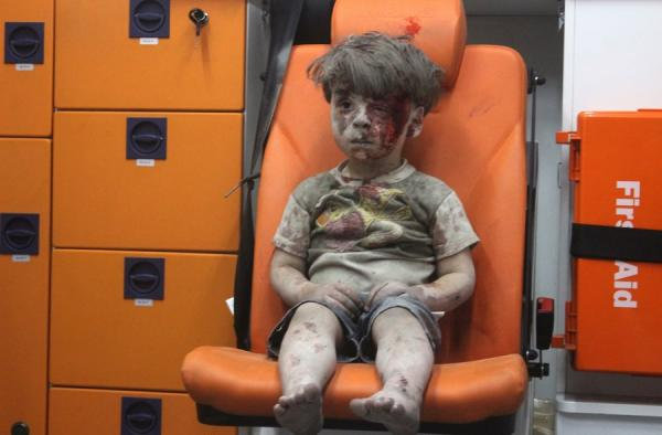 Aleppo boy's brother dies of his wounds